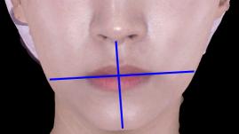 휜턱과 입술비대칭