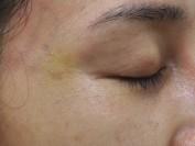 눈가주름 피부톤개선