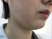 비대칭으로 심화된 이중턱, 넓은 얼굴(매선+윤곽약침)