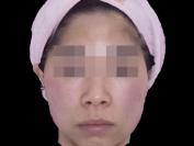턱 입술비대칭