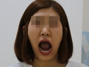 턱 입술비대칭 개구