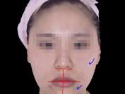 한쪽 얼굴이 떨어져 보이는 비대칭(교정매선+스플린트)