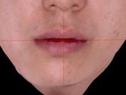 우측으로 아래턱이 돌아간 케이스 (안면교정시술+ 교정매선)