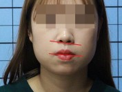 코, 입술비대칭/ 안면축소