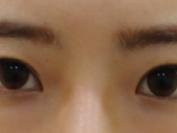 눈비대칭교정